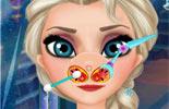 Elsa Nose Doctor